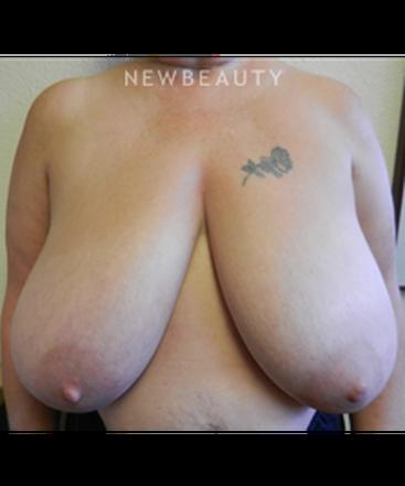 dr-jennifer-e-boll-breast-reduction-b