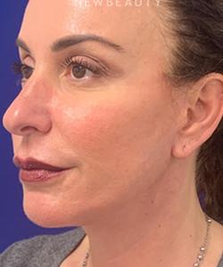 dr-dilip-madnani-facial-rejuvenation-b