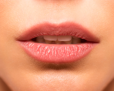 Lose Mouth Lines and Wrinkles Without a Facelift
