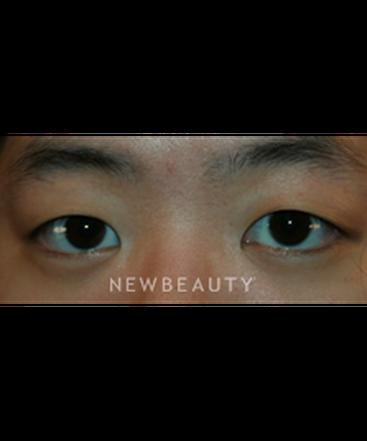 dr-john-kang-eyelift-b
