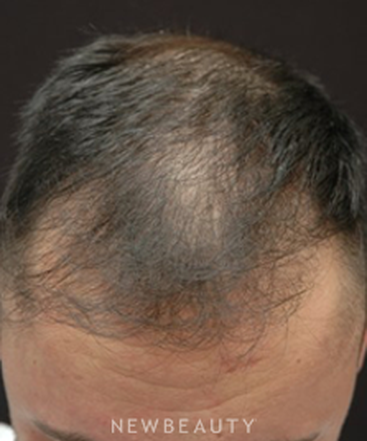dr-jeffrey-b-wise-hair-transplant-b