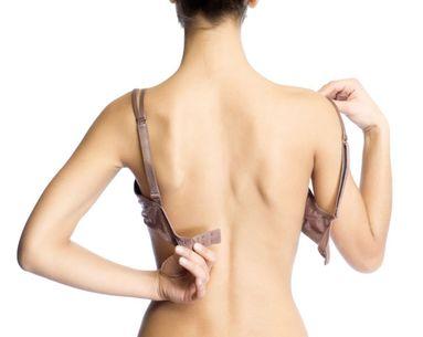 Back Fat: A Liposuction Challenge
