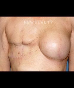 dr-bryan-gawley-breast-reconstruction-b