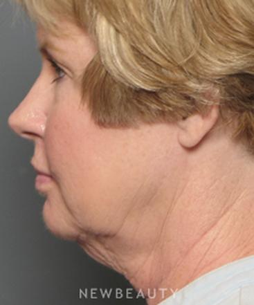 dr-adam-stein-facelift-b