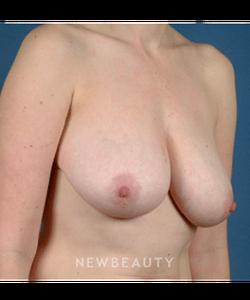dr-bradley-calobrace-breast-lift-b