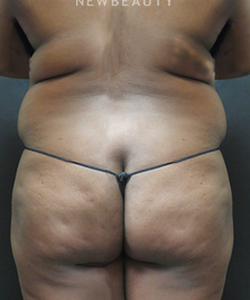 dr-elie-levine-liposuction-b