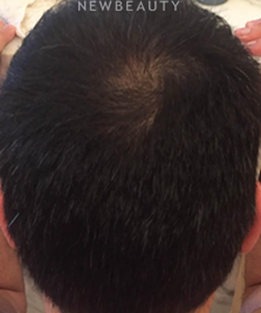 dr-mitchell-ross-hair-loss-treatment-b