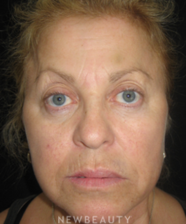 dr-dele-michael-injectables-fillers-b