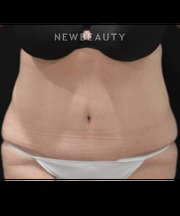 dr-cynthia-m-poulos-tummy-tuck-b