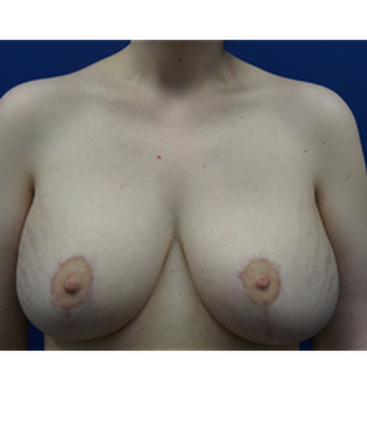 dr-kevin-tehrani-breast-augmentation-breast-implants-breast-lift-b