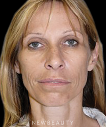 ordon-chopra-facial-rejuvenation-b