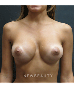 dr-elie-levine-breast-augmentation-b