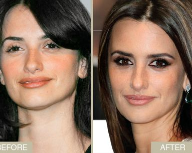 Celebrity Skin Makeover: Reduce Redness Like Penélope Cruz