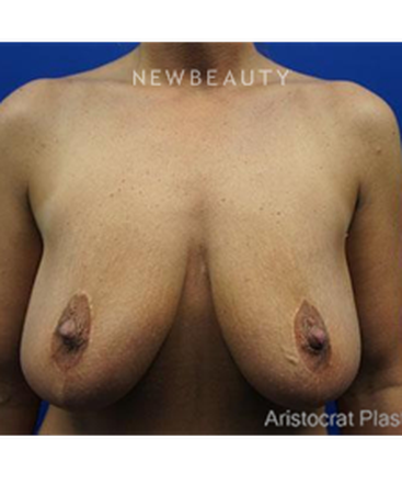 dr-kevin-tehrani-breast-reshaping-b