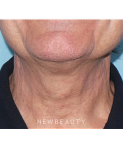 dr-sean-simon-precision-neck-lift-b