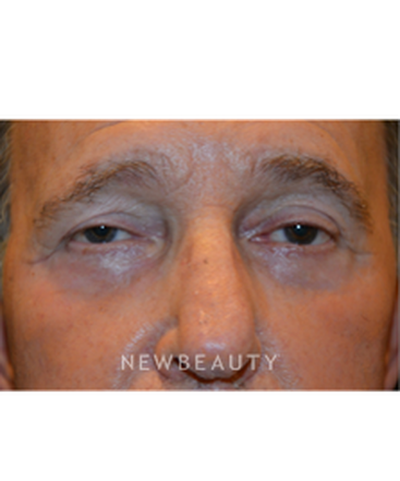 dr-aviva-preminger-lower-blepharoplasty-b