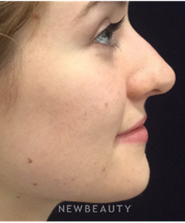 dr-kim-nichols-nonsurgical-rhinoplasty-b
