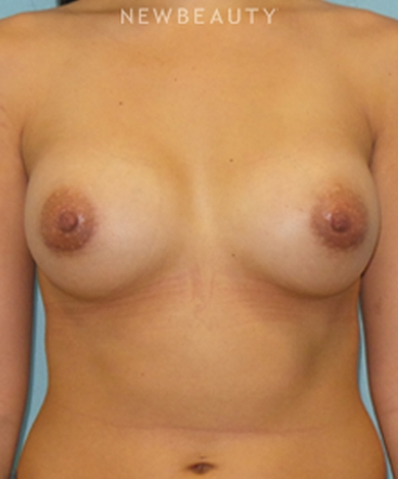 dr-sean-simon-breast-augmentation-b