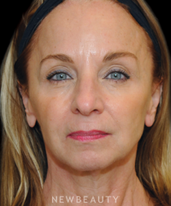 dr-janet-allenby-injectables-b
