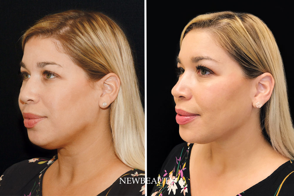 """Aging in the era of filters and Kardashians is For this NewBeauty features editor, reaching an important milestone meant finally trying some """"prejuvenation"""" treatments I'd written about for years."""