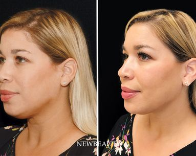 How CoolSculpting and Filler Gave My 40-Year-Old Face a Kardashian-Jenner Contour