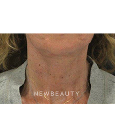 dr-b-aviva-preminger-neck-lift-b