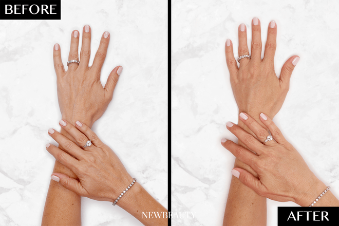 Restylane® Lyft for Hands - NewBeauty