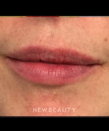 dr-lynn-haven-volumizing-lips-b