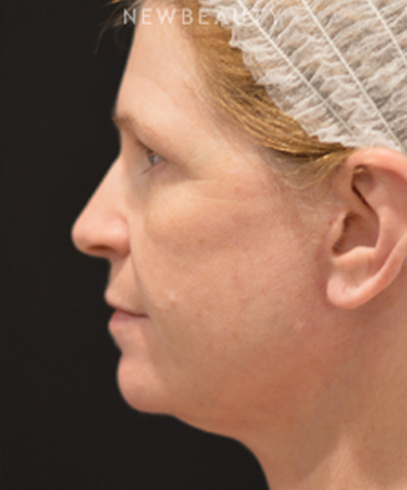 dr-cynthia-poulos-facelift-b