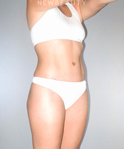 dr-german-newall-tighter-midsection-b