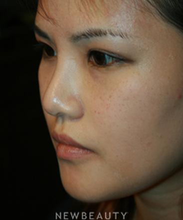 dr-john-kang-upper-blepharoplasty-rhinoplasty-b