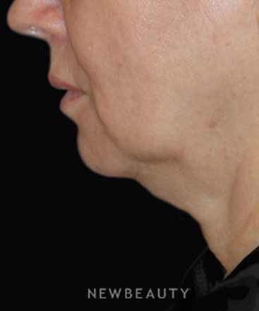 dr-min-ahn-facelift-necklift-laser-treatment-b