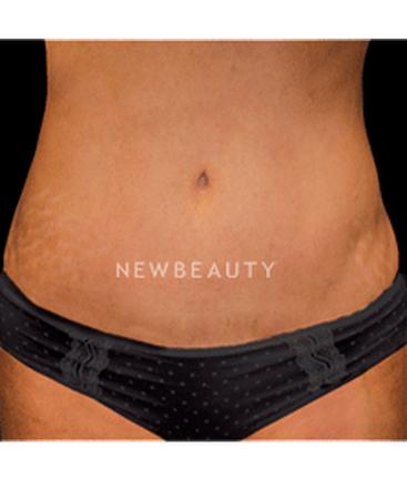 dr-christine-hamori-laser-liposuction-skin-tightening-b