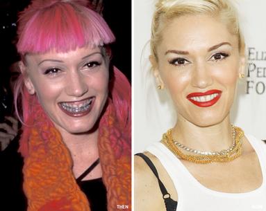 Smile Makeover: Gwen Stefani's Transformation
