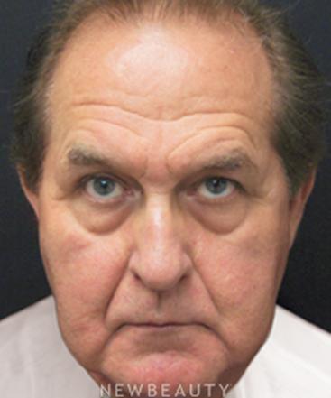 dr-mokhtar-asaadi-blepharoplasty-traditional-facelift-b