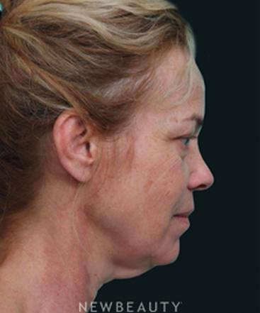 dr-juan-carlos-fuentes-browlift-blepharoplasty-traditional-facelift-necklift-b