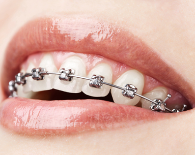 Poll: Would You Wear Braces as an Adult?