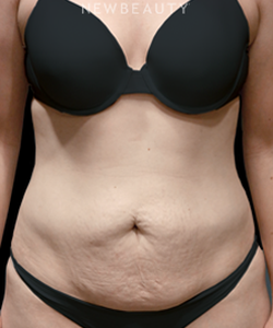 dr-bryan-w-gawley-a-new-waistline-b
