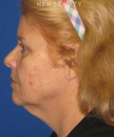 dr-dilip-d-madnani-facelift-necklift-b