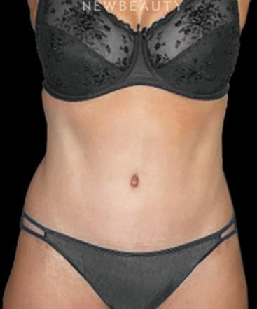 dr-henry-mentz-tummy-tuck-and-liposuction-b