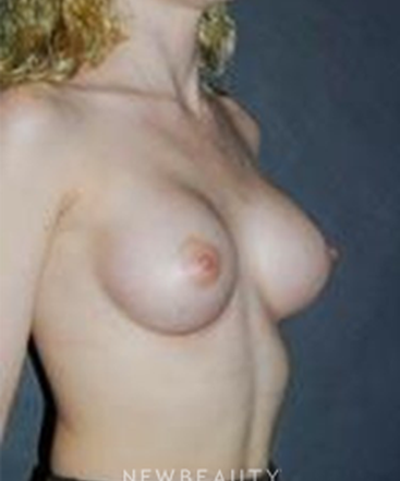 dr-scott-e-newman-breast-augmentation-b