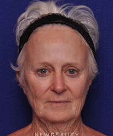 dr-alan-durkin-facelift-b