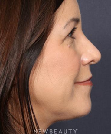 la-jolla-cosmetic-surgery-rhinoplasty-b