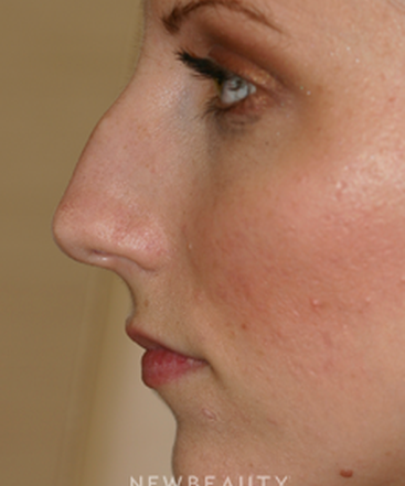 dr-lee-ann-klausner-rhinoplasty-b