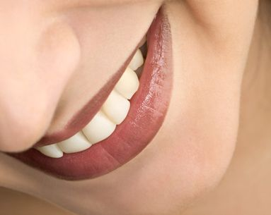 Makeover Your Smile in No Time