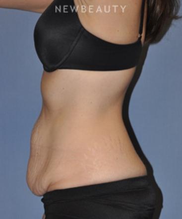 dr-bryan-w-gawley-slimming-profile-b