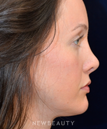 dr-cynthia-poulos-revision-rhinoplasty-b