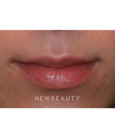 dr-irene-gladstein-lip-enhancement-b