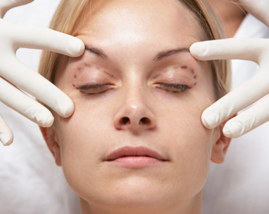 Real Women, Real Concerns: Blepharoplasty Risks