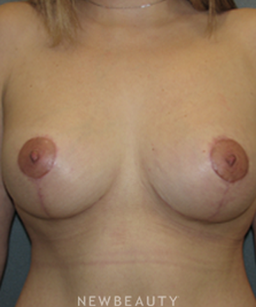dr-sean-simon-breast-augmentation-breast-lift-liposuction-tummy-tuck-b